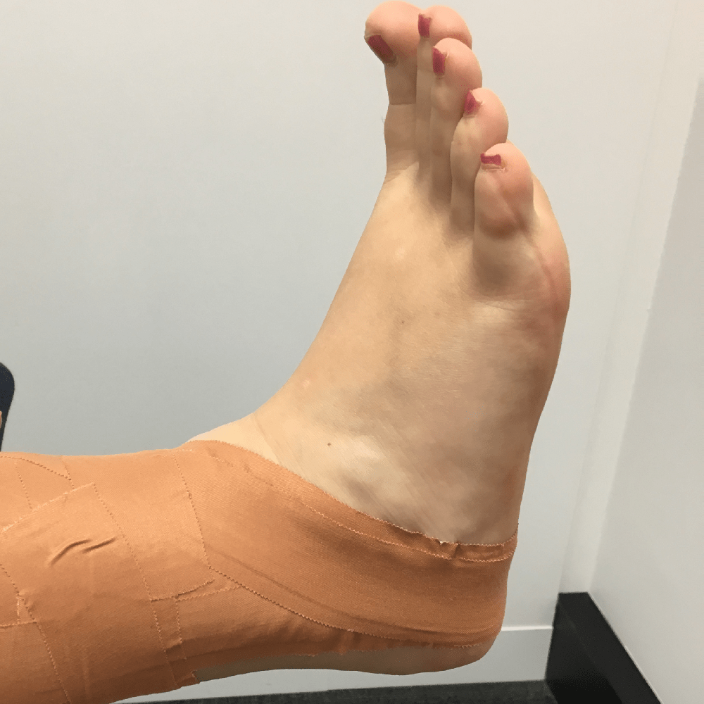 It Is Just A Sprained Ankle – Why Do I Need To See My Physio?