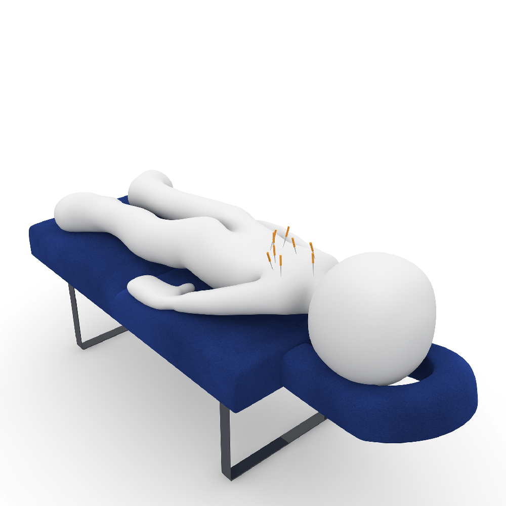 Dry Needling, Acupuncture…What's the difference?