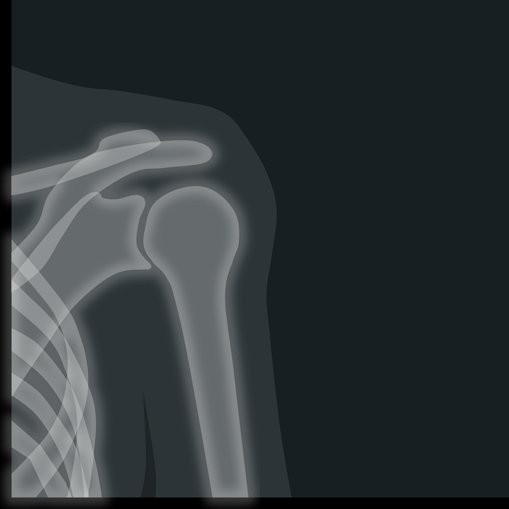 Rotator Cuff Pain and Shoulder Impingement