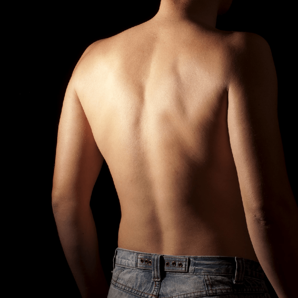 What is Scoliosis? Could I have it? Is it causing my back pain?