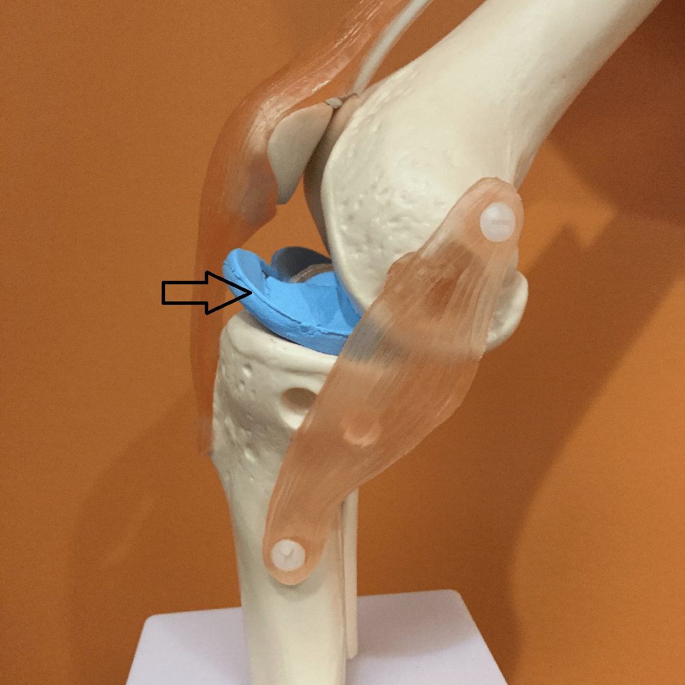 Should I Have Meniscus Surgery On My Knee?