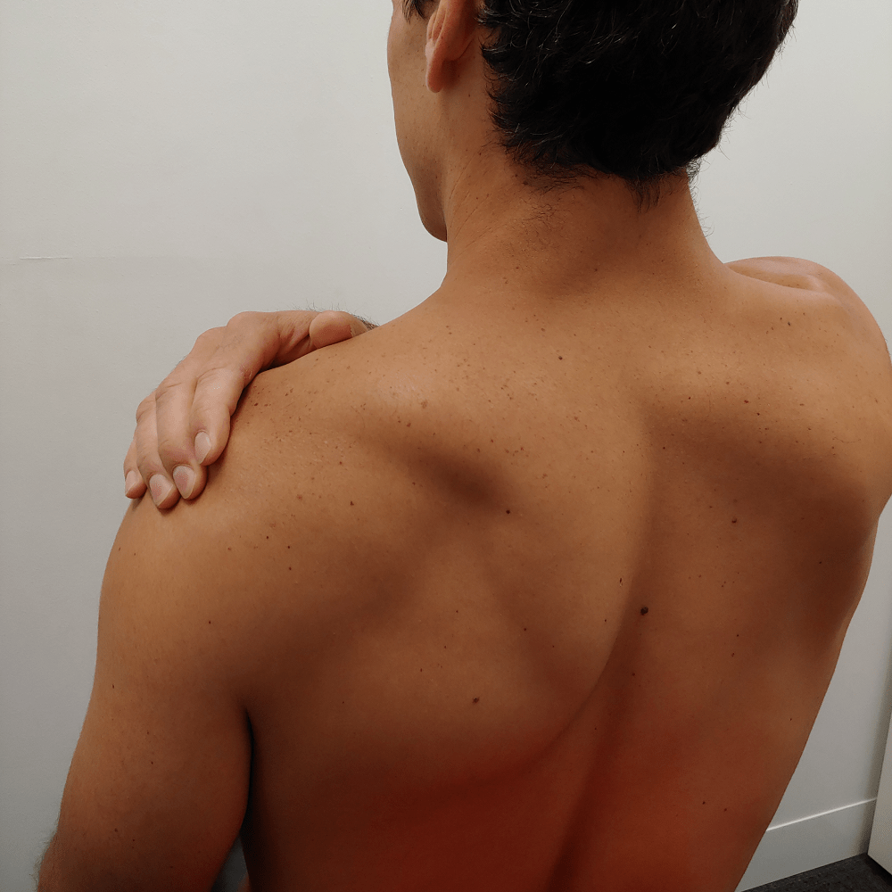 Shoulder Pain! Have I Torn My Rotator Cuff?