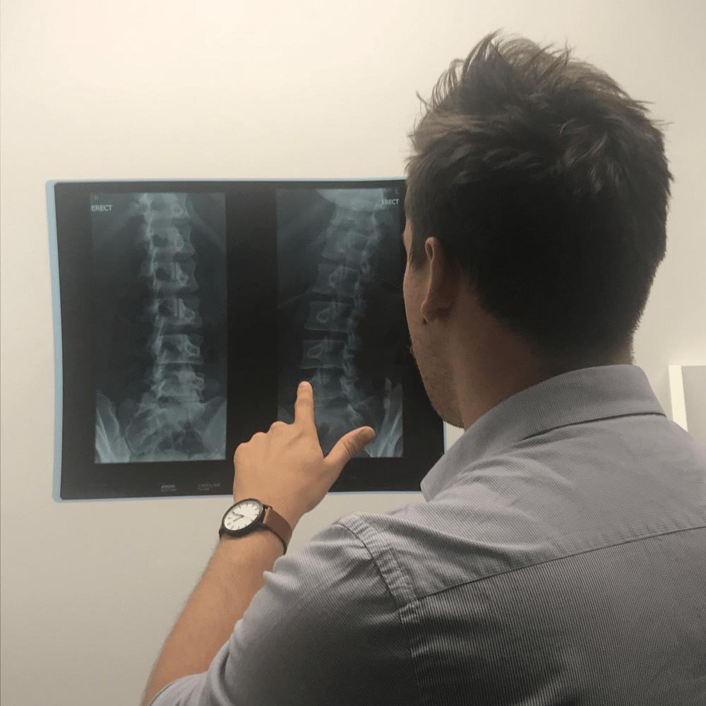 Why We Don't Scan Everyone's Back Pain