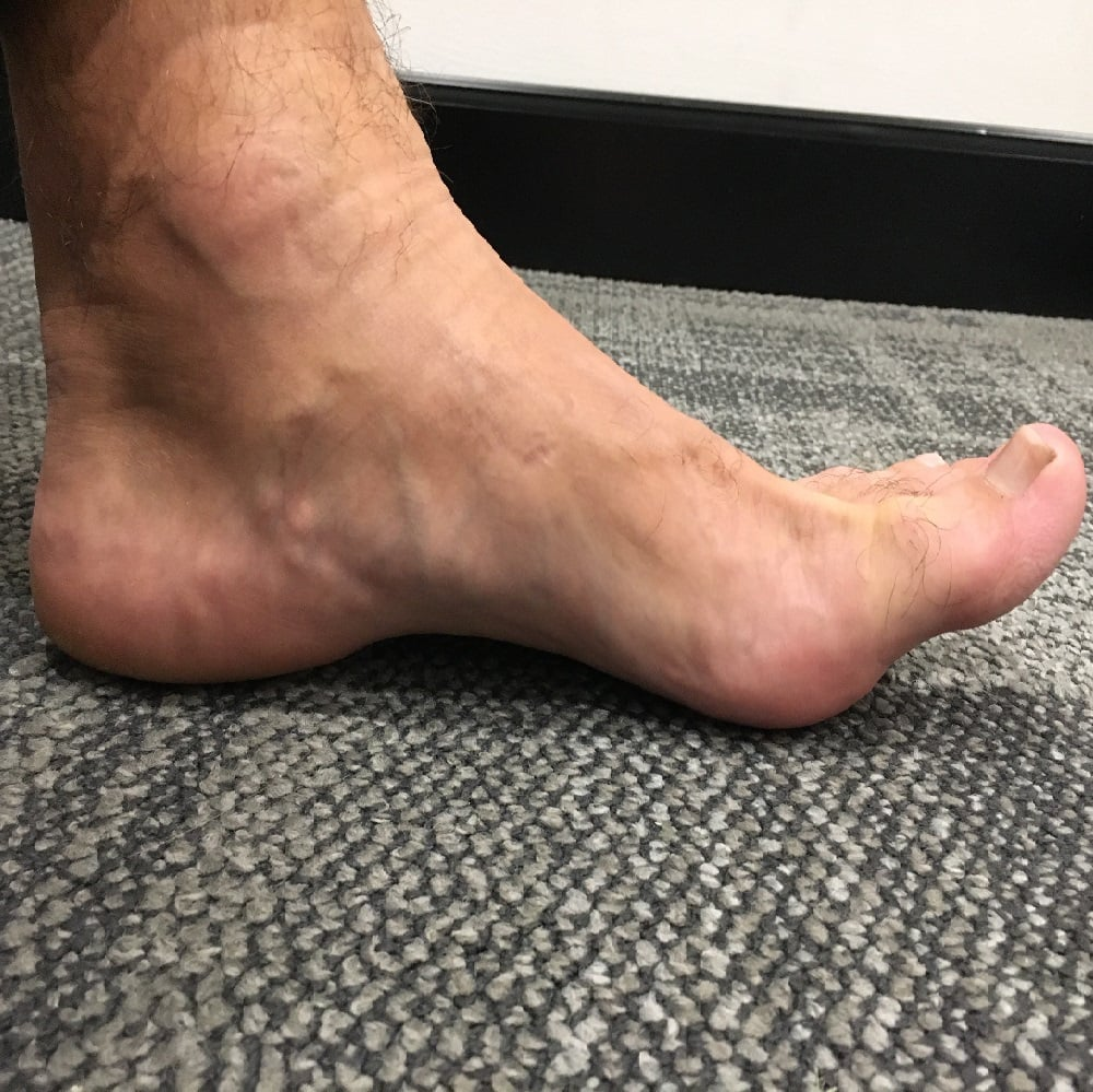 Stiff Big Toe? Hallux Limitus/Rigidus