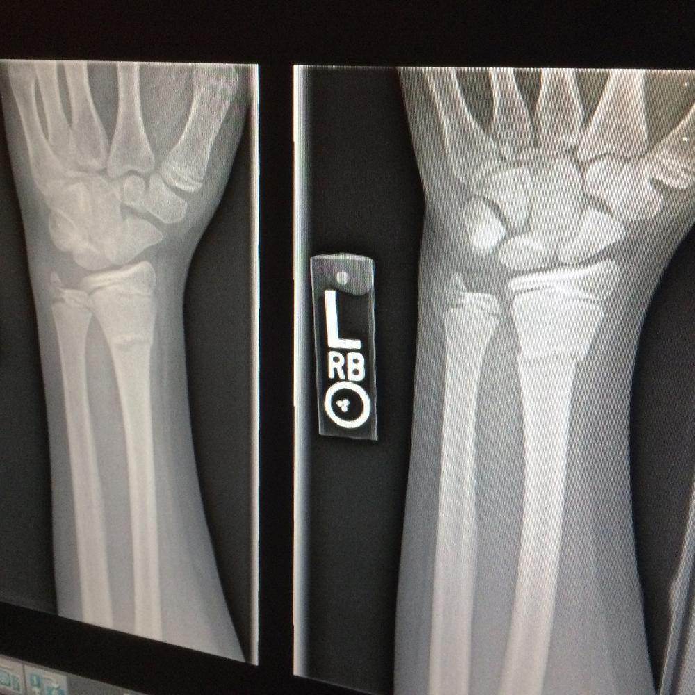 Is it Broken or Just a Sprain???