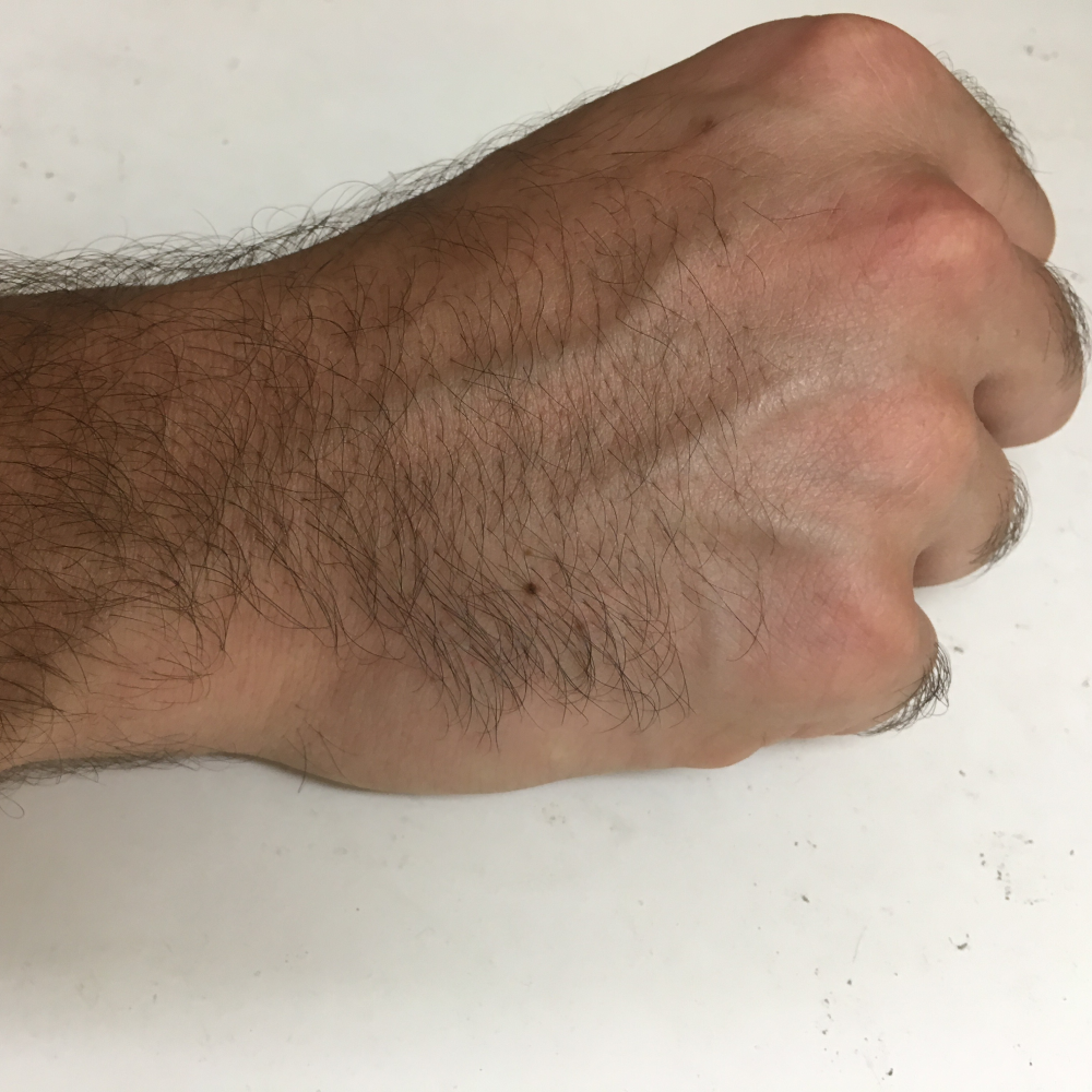 What Is A TFCC Tear In The Wrist?