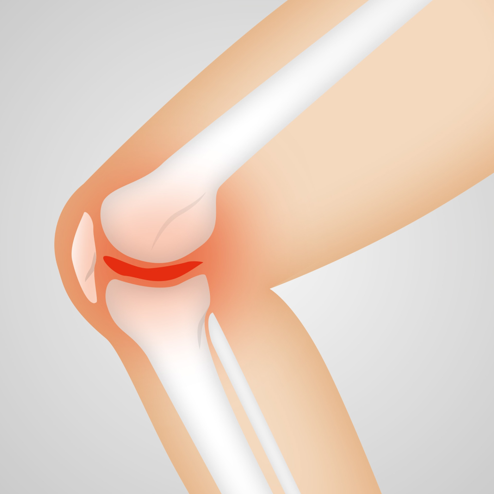Meniscal Tear – What Does This Mean?