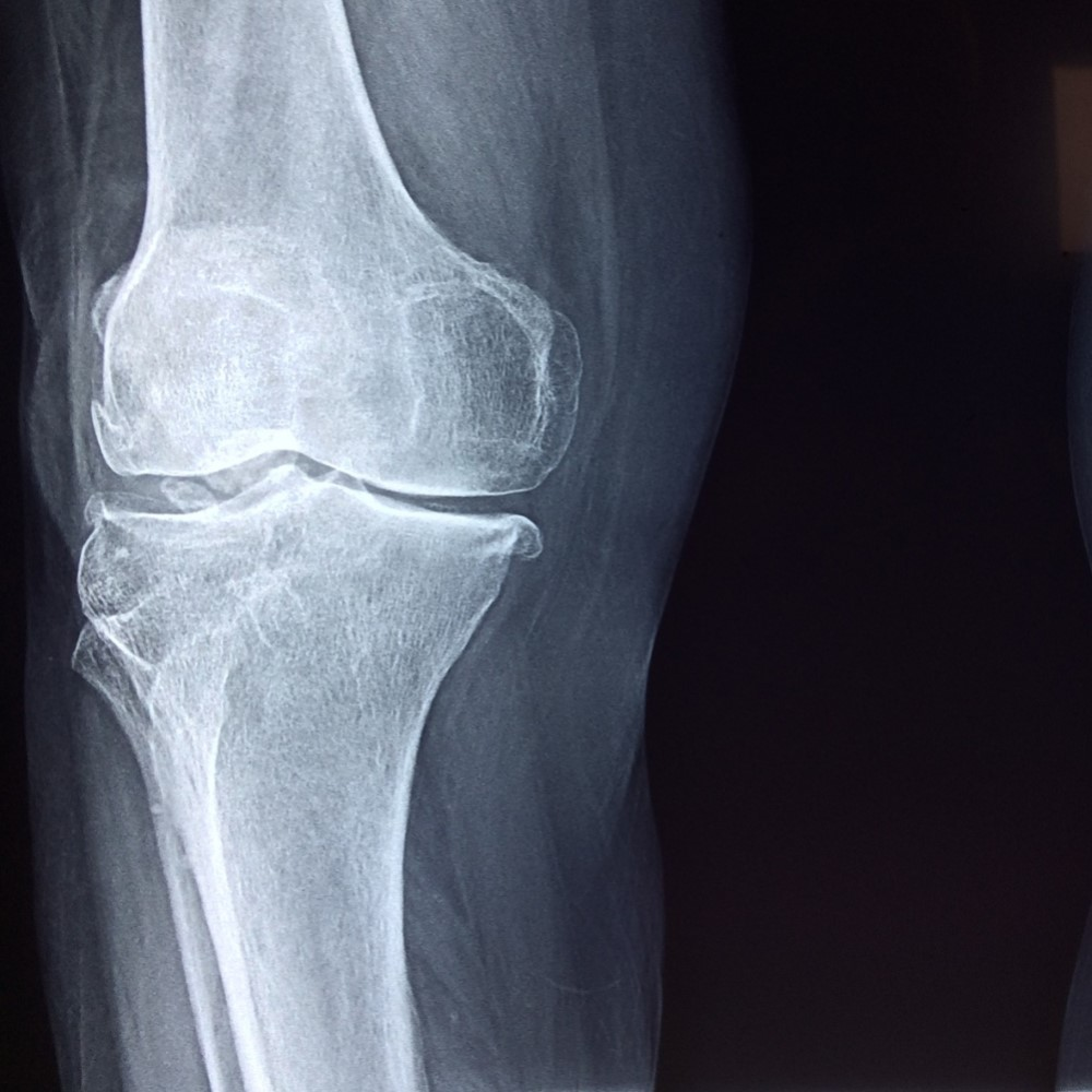 My Knee Hurts, Should I Scan It?